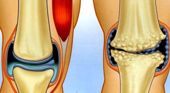 Клиника по лечению коленного сустава повреждение манжеты плечевого сустава как лечить