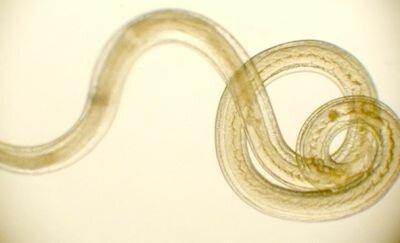 Анализ кала на яйца глист, многопрофильная клиника МедПросвет