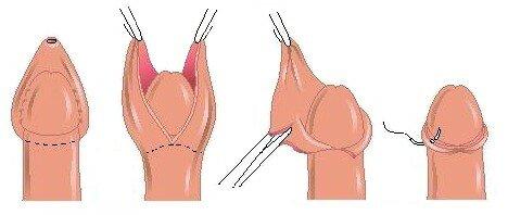 Фото обрезание члены и оргазмы
