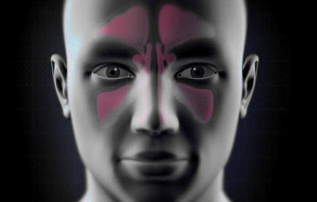 Удаление кист пазух носа, многопрофильная клиника МедПросвет