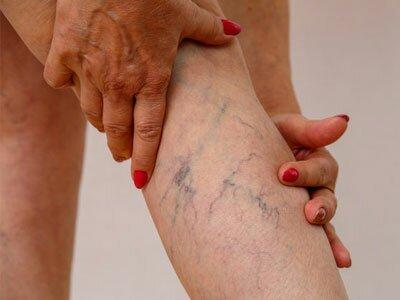 вены на ногах картинка