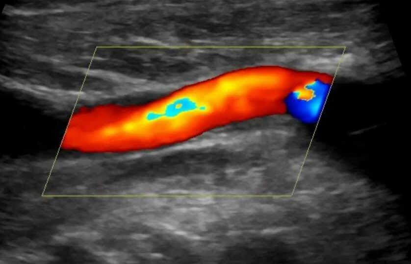 Дуплексное сканирование сосудов вен и артерий – что это такое когда и как его проводят