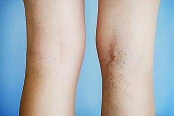 Вены на ногах выступают и ноги болят что это
